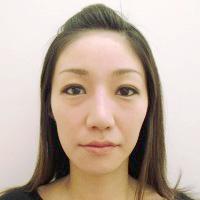 鼻プロテーゼ・鼻線縮小・耳介軟骨移植術後写真