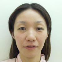 鼻プロテーゼ・鼻線縮小・耳介軟骨移植術前写真