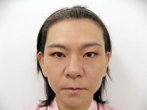 フェイスリフト・エラのボトックス注射 術後(正面)
