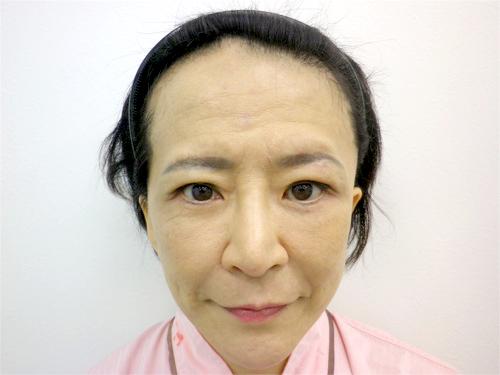 フェイスリフト・顎のヒアルロン酸 施術後(正面)
