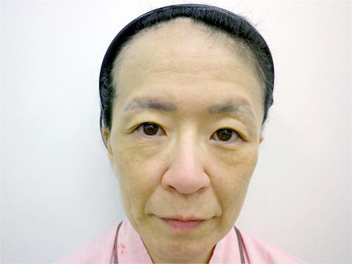フェイスリフト・顎のヒアルロン酸 施術前(正面)