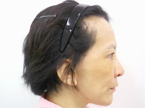 フェイスリフト・顎のヒアルロン酸 施術後(横)