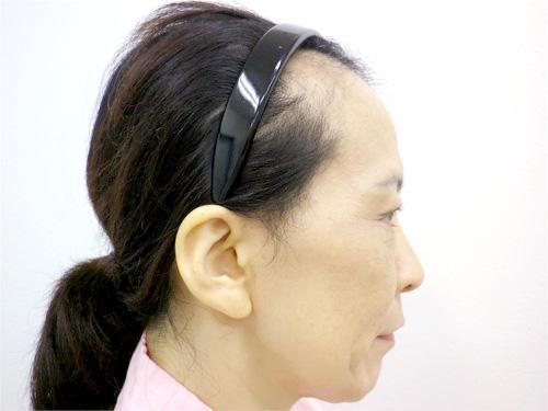 フェイスリフト・顎のヒアルロン酸 施術前(横)