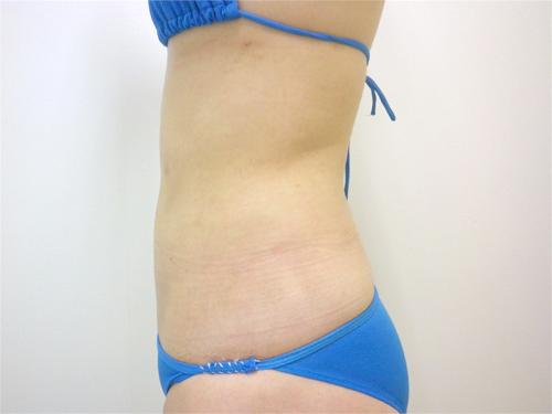 【脂肪吸引】上、下腹部・ウエスト・腰術後