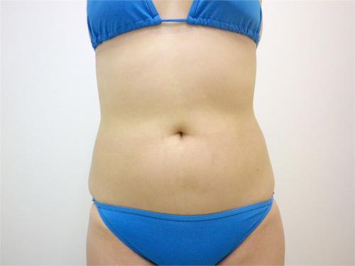 【脂肪吸引】上、下腹部・ウエスト・腰術前