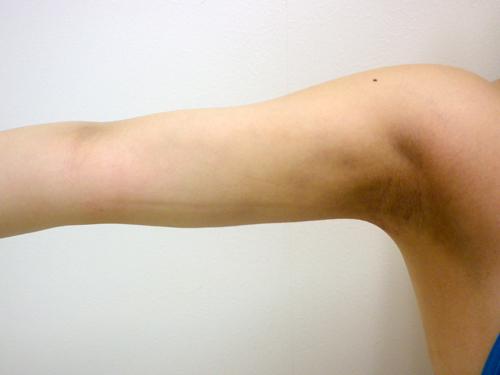 【脂肪吸引】二の腕(振袖・肩の張り出し+つけ根・背中)術後