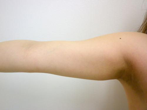 【脂肪吸引】二の腕(振袖・肩の張り出し+つけ根・背中)術前