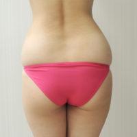 【脂肪吸引】腰・太もも(全周【臀部含む】)術前