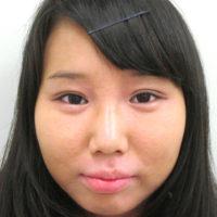 二重切開法・涙袋ヒアルロン酸注入・鼻筋ヒアルロン酸注入 施術後(正面)