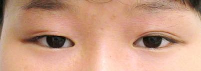 二重切開法・涙袋ヒアルロン酸注入・鼻筋ヒアルロン酸注入 施術前アップ写真