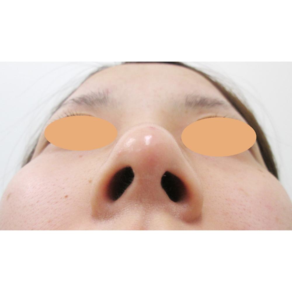 鼻骨骨切り、鼻尖縮小、耳介軟骨移植術後下から写真