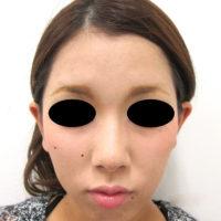 鼻骨骨切り、鼻尖縮小、耳介軟骨移植術後写真