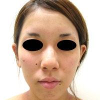鼻骨骨切り、鼻尖縮小、耳介軟骨移植術前写真