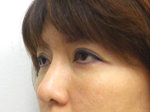 目の下のたるみ取り(ハムラ法)【術後】