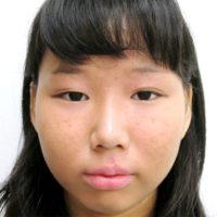 二重切開法・涙袋ヒアルロン酸注入・鼻筋ヒアルロン酸注入 施術前(正面)