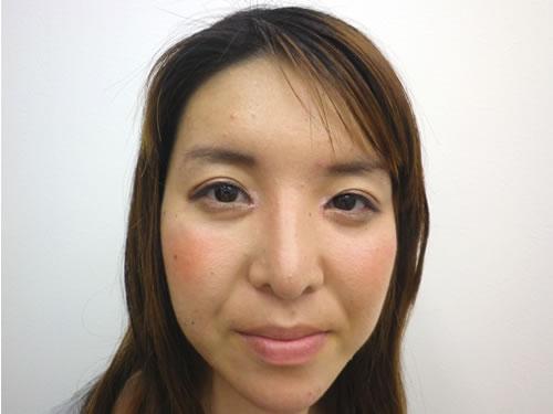 目頭切開法、鼻プロテーゼ・顎プロテーゼ施術後写真