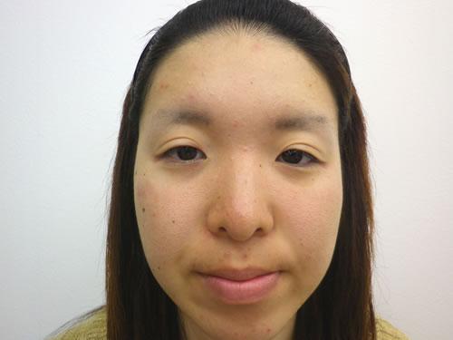 目頭切開法、鼻プロテーゼ・顎プロテーゼ施術前写真