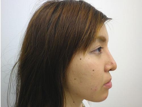 目頭切開法、鼻プロテーゼ・顎プロテーゼ施術後横写真