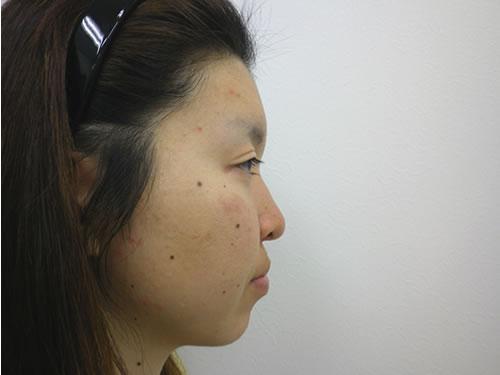 目頭切開法、鼻プロテーゼ・顎プロテーゼ施術前横写真