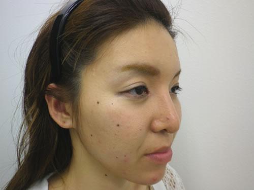 目頭切開法、鼻プロテーゼ・顎プロテーゼ施術後斜め写真