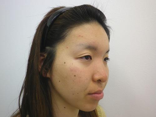 目頭切開法、鼻プロテーゼ・顎プロテーゼ施術前斜め写真