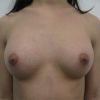 【豊胸術】乳腺下法(シリコン225cc)術後