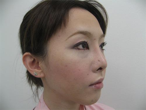 眼瞼下垂・鼻プロテーゼ術後写真