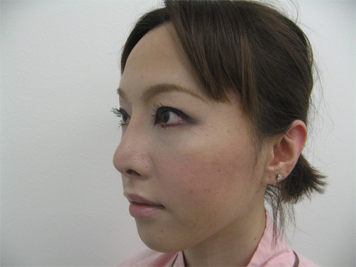 眼瞼下垂・鼻プロテーゼ術後斜め写真