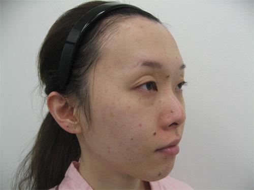 眼瞼下垂・鼻プロテーゼ術前写真