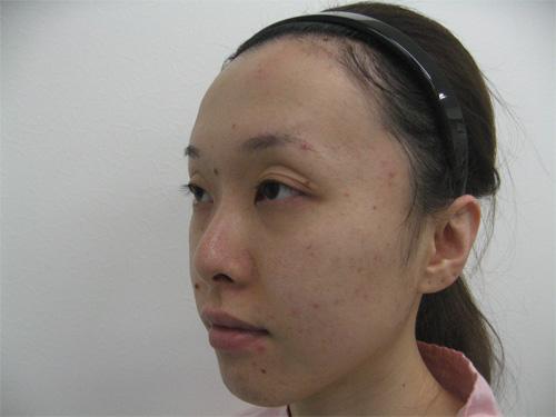 眼瞼下垂・鼻プロテーゼ術前斜め写真
