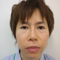 二重切開法・鼻プロテーゼ・小鼻縮小施術後写真