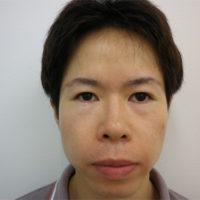 二重切開法・鼻プロテーゼ・小鼻縮小施術前写真