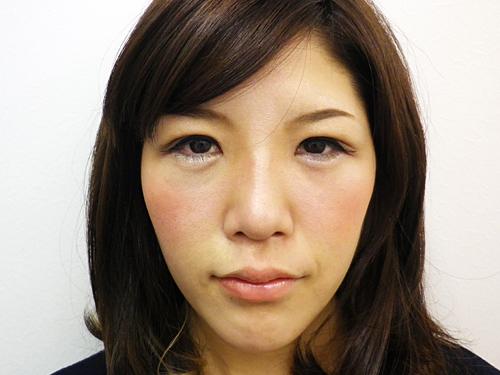 二重埋没法・涙袋・鼻・唇へのヒアルロン酸注入 施術後(正面)