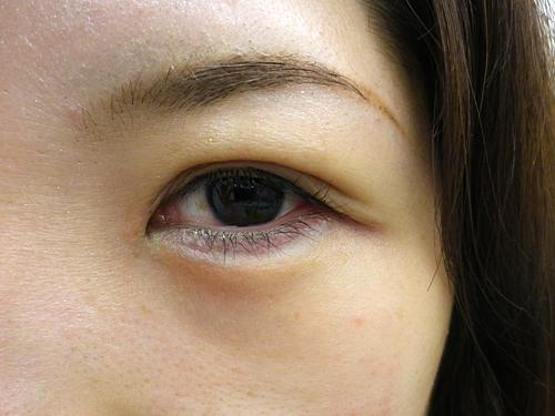 二重埋没法・涙袋・鼻・唇へのヒアルロン酸注入 施術後(目元アップ)