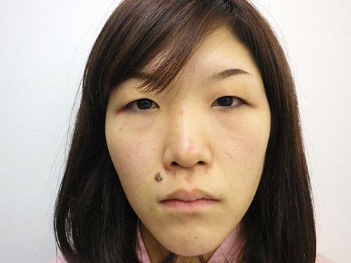 二重埋没法・涙袋・鼻・唇へのヒアルロン酸注入 施術前(正面)