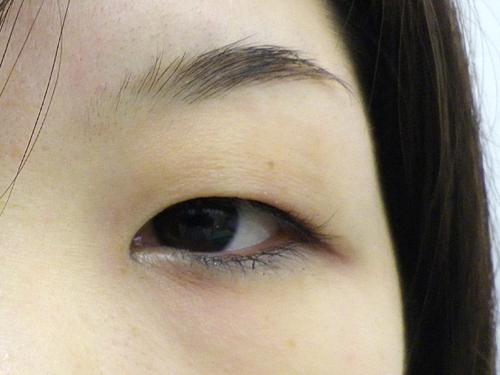 二重埋没法・涙袋・鼻・唇へのヒアルロン酸注入 施術前(目元アップ)