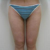 【脂肪吸引】太もも(全周【臀部含む】)術後