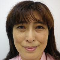 隆鼻術(鼻プロテーゼ)、二重切開法施術後写真