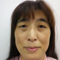 隆鼻術(鼻プロテーゼ)、二重切開法施術前写真
