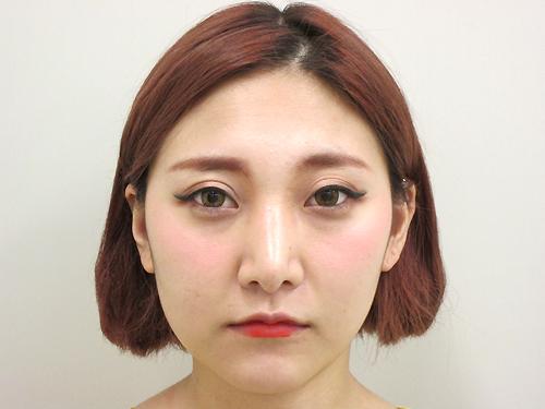 鼻骨骨切り・鼻尖縮小・耳介軟骨移植【術後】