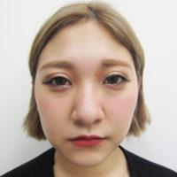 鼻骨骨切り・鼻尖縮小・耳介軟骨移植【術前】