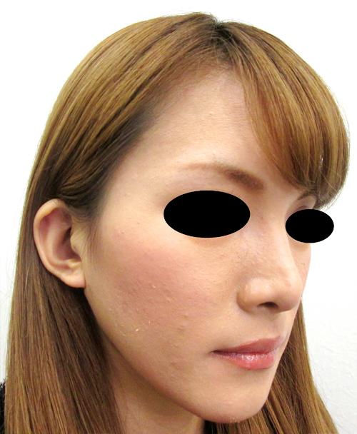 鼻骨骨切り・鼻中隔延長術後 ななめ写真