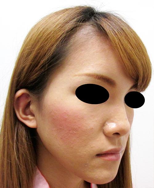 鼻骨骨切り・鼻中隔延長術前 ななめ写真