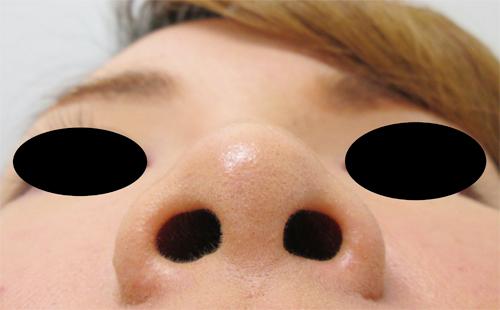 鼻骨骨切り・鼻中隔延長術前 下からの写真