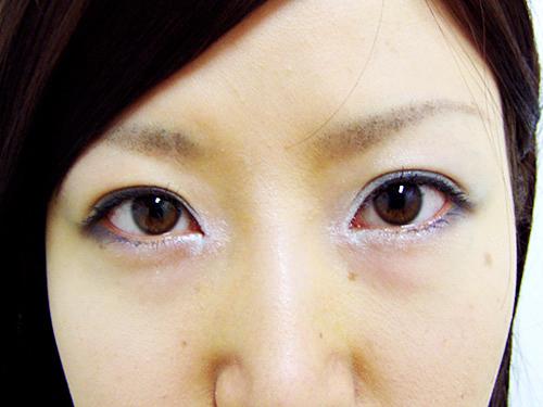 【脂肪吸引】頬・目頭切開法・二重埋没法・ヒアルロン酸注入(鼻)施術後アップ写真