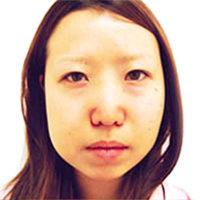 【脂肪吸引】頬・目頭切開法・二重埋没法・ヒアルロン酸注入(鼻)施術前写真