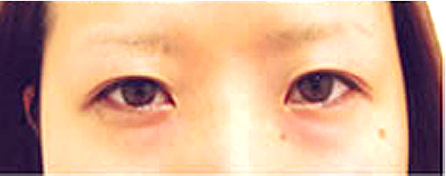 【脂肪吸引】頬・目頭切開法・二重埋没法・ヒアルロン酸注入(鼻)施術前アップ写真