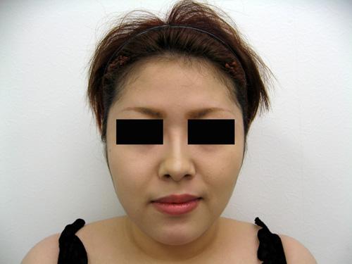 お顔の脂肪吸引、顎のプロテーゼ挿入術、お鼻のプロテーゼ施術後写真