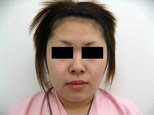 お顔の脂肪吸引、顎のプロテーゼ挿入術、お鼻のプロテーゼ施術前写真