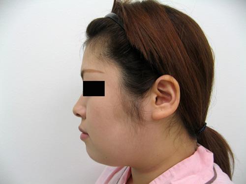 お顔の脂肪吸引、顎のプロテーゼ挿入術、お鼻のプロテーゼ施術前横写真